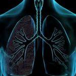 pneumonas.medium 1
