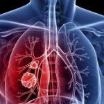 Άντρες χτυπά κυρίως ο καρκίνος του πνεύμονα στην Ελλάδα