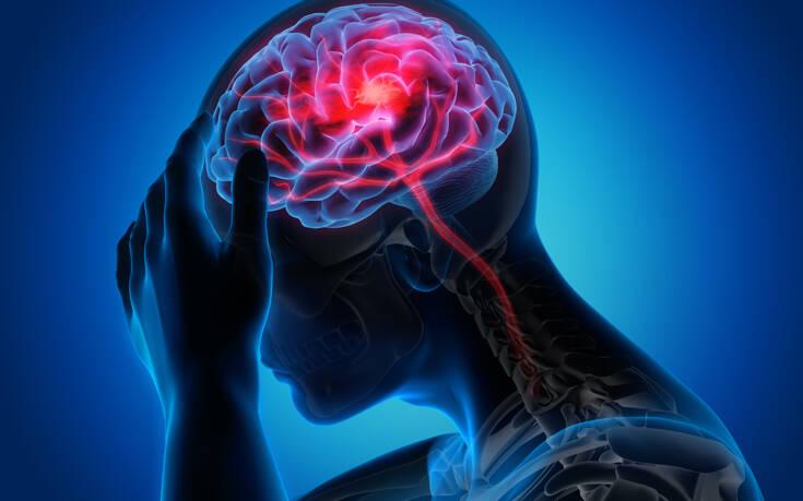 Δείτε πώς «πνίγεται» ο εγκέφαλος στα υγρά του μετά το εγκεφαλικό